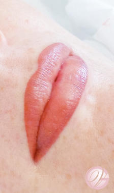 Luscious lips, directly after treatment which will tone down after healing.