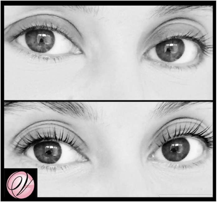 ​Before & After of our LVL Lash Treatment​